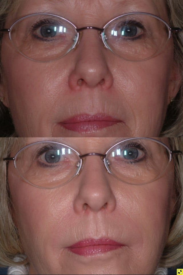 Dermal Fillers for Wrinkles in St  Louis, MO | Westcoderm com