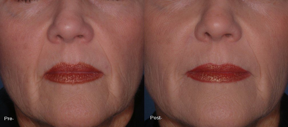 how to extend filler results