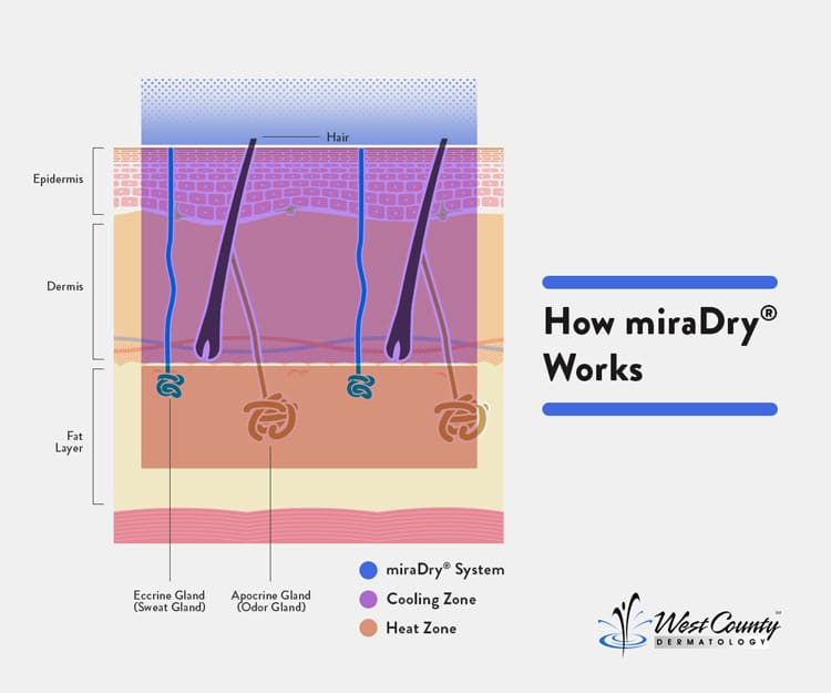 Although miraDry® uses powerful heat to shut down sweat and odor glands at Chesterfield's West County Dermatology, the technology keeps layers above cool to prevent damage.